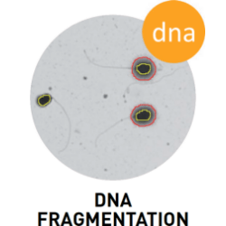 SCA DNA Fragmentation