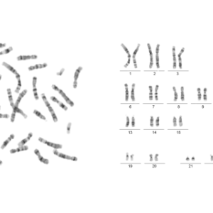 MetaClass Karyotyping